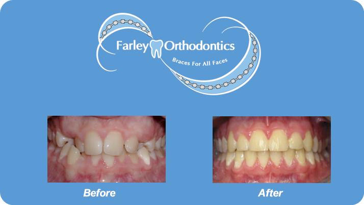 Woodlands-TX-Orthodontist-Farley-Orthodontics-Braces-6.png