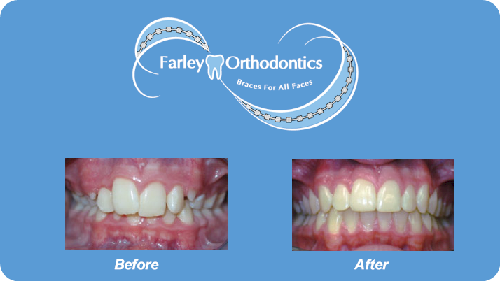 Woodlands-TX-Orthodontist-Farley-Orthodontics-Braces-7.png