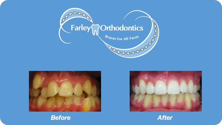 Woodlands-TX-Orthodontist-Farley-Orthodontics-Braces-8.png