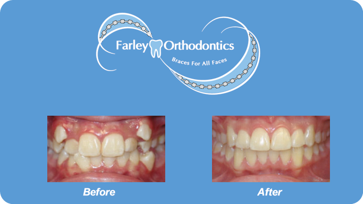 Woodlands-TX-Orthodontist-Farley-Orthodontics-Braces-9.png