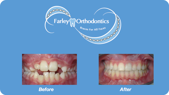 Woodlands-TX-Orthodontist-Farley-Orthodontics-Braces-10.png