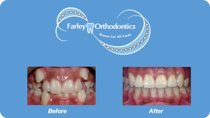 Woodlands-TX-Orthodontist-Farley-Orthodontics-Braces-11.png
