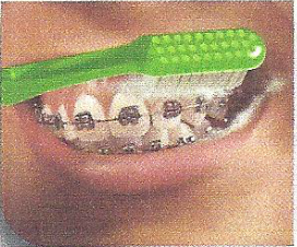 Brush the outside of your teeth using a circular motion. Then angle the brush to reach under the wires and between the brackets and gums.