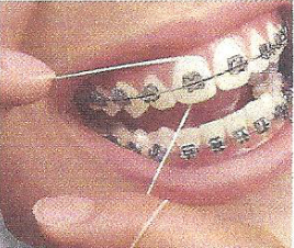 When flossing, pull the floss between teeth (a floss threader may help). Work it up and down under your gums. Repeat between every tooth, then rinse.