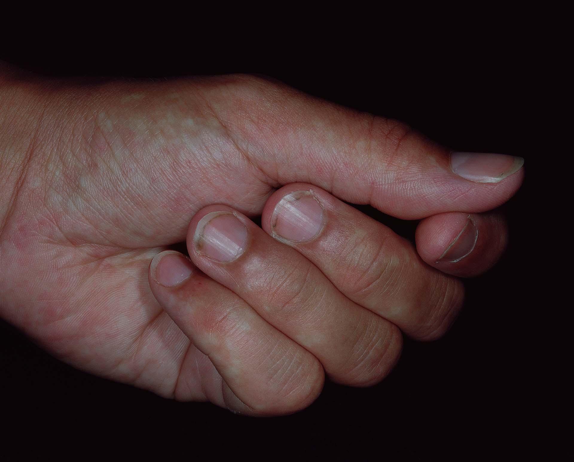 Simon_Berg_07_006_06_kycklingklubba 30x24.jpg
