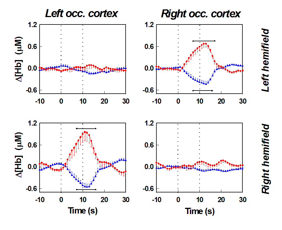 Visual Cortex Stimulation