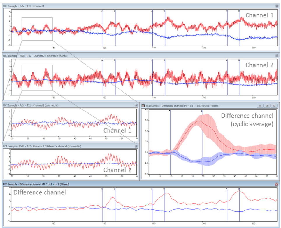 Figure 2. Typical oxyhemoglobin (red) and deoxyhemoglobin (blue) concentrations changes measured in the motor cortex (graphs made in OxySoft). The x-axis shows time in seconds and the y-axis shows concentrations changes in micro molar. Finger tapping is performed between the vertical blue lines. The top graph shows the hemody­namic changes measured using 4 cm inter-op­tode distance (channel 1) and the graph below shows the hemoglobin concentrations at the more superficial channel with 1.5 cm inter-optode distance (channel 2). The difference between the two channels is plot­ted in the bottom graph. A multiplication factor (MF) is used in the subtraction (MF x channel 1- channel 2). In this case the multiplication factor for O2Hb is 1.6. A cyclic average with standard deviation over the three finger tapping periods is plotted as well.