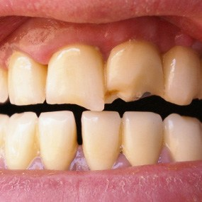 Dental discoloration and damage due to bulimia