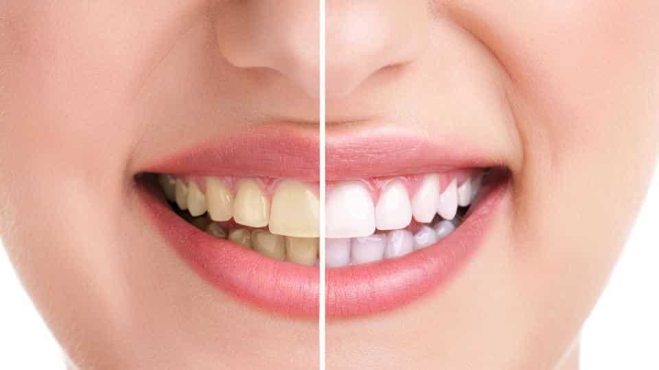 stained teeth.jpg