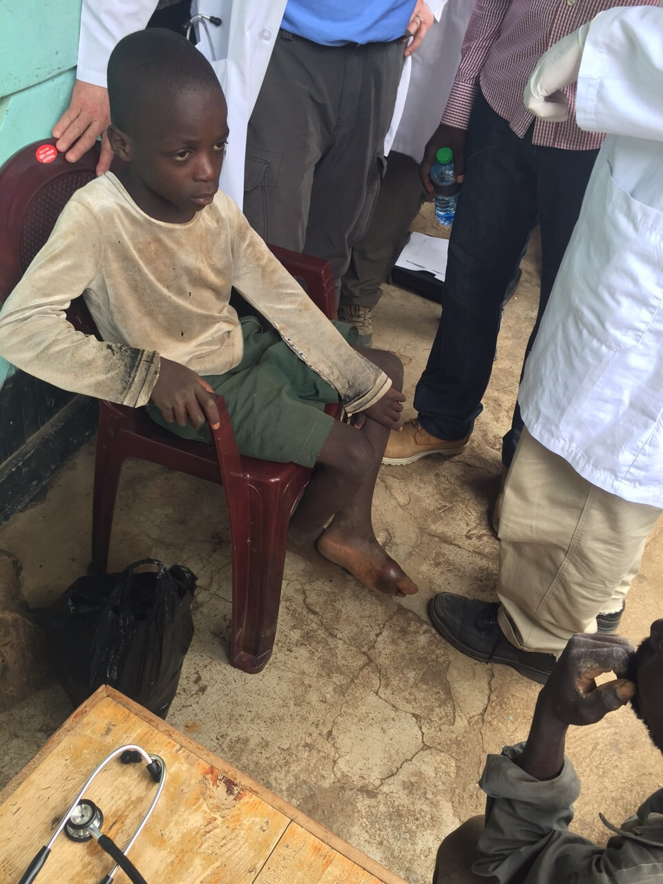 Boy with  abscessed foot