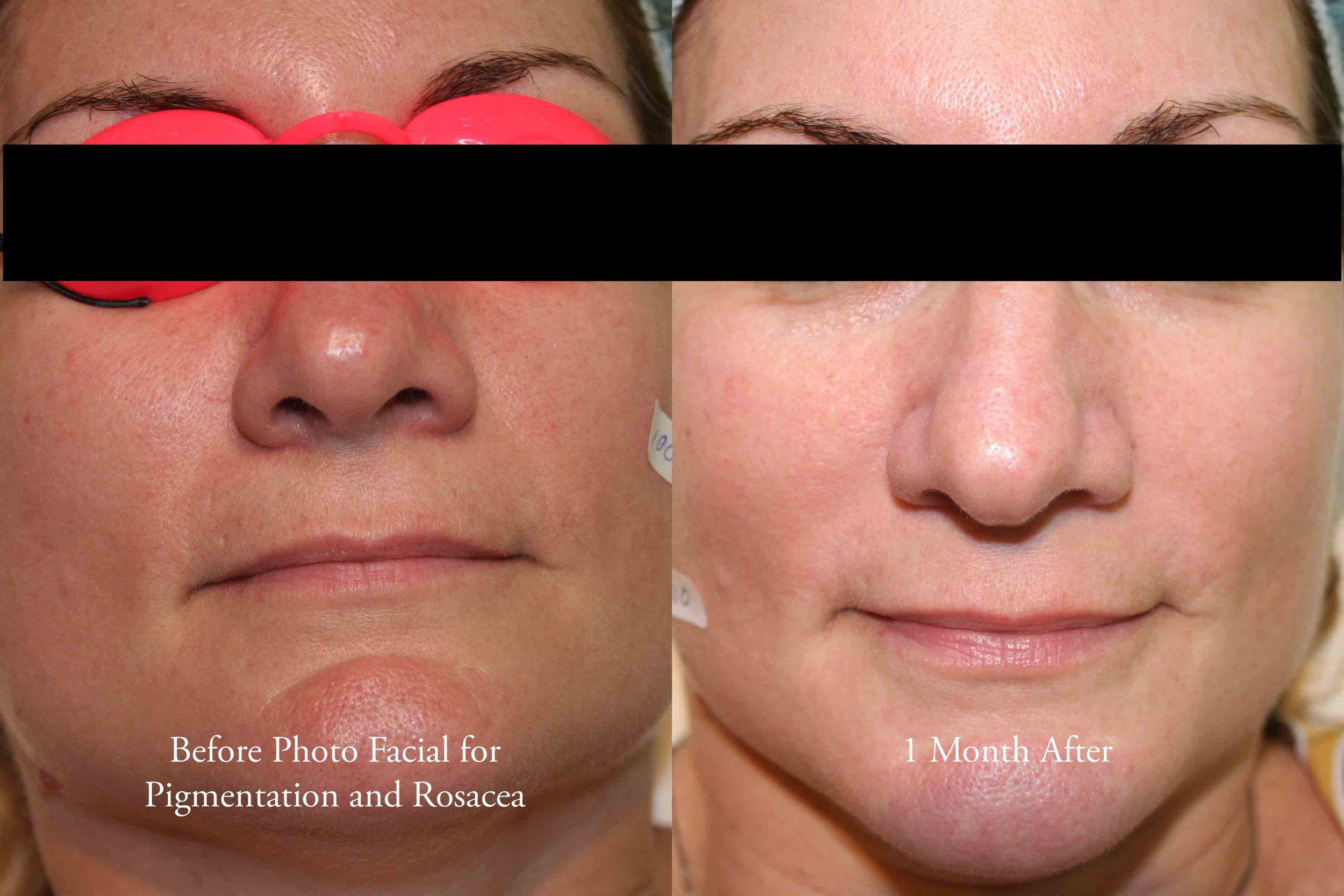 photo facial for rosacea and pigmentation 1 - web.jpg