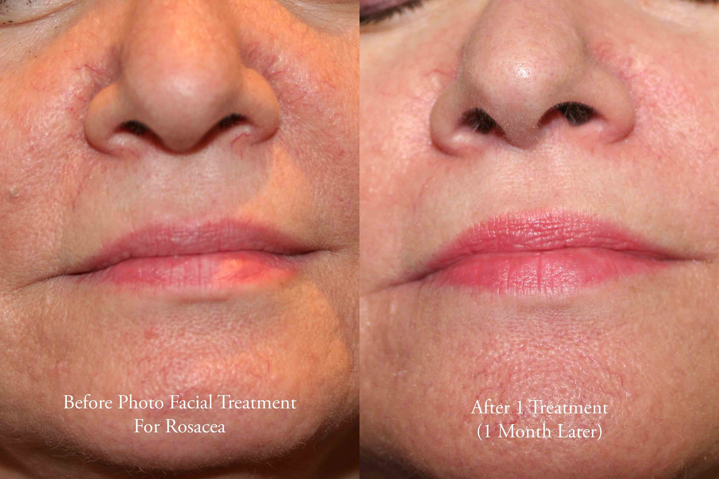 Photo Facial for Rosacea 1 - web.jpg
