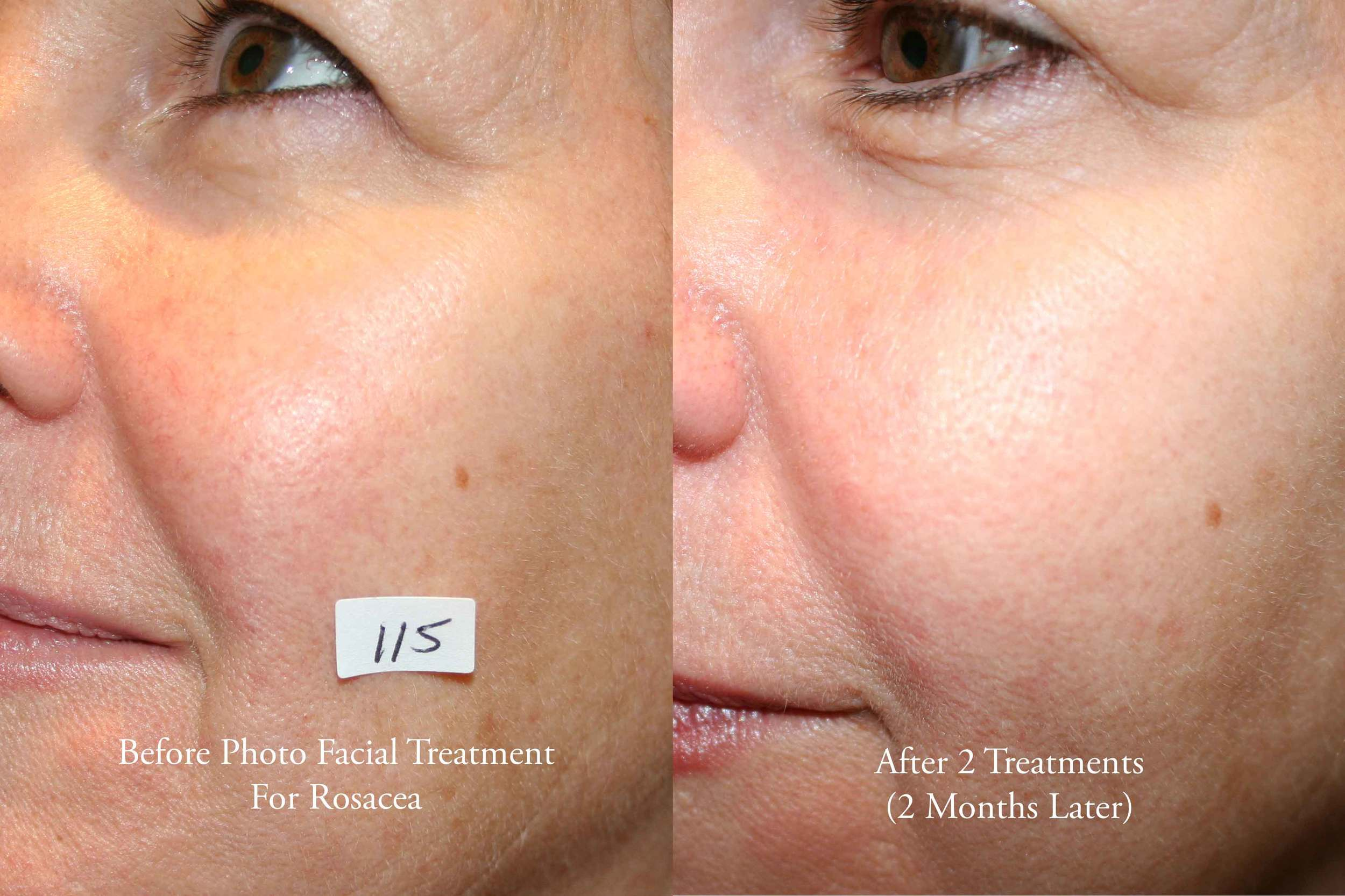 Photo Facial for Rosacea 2.jpg