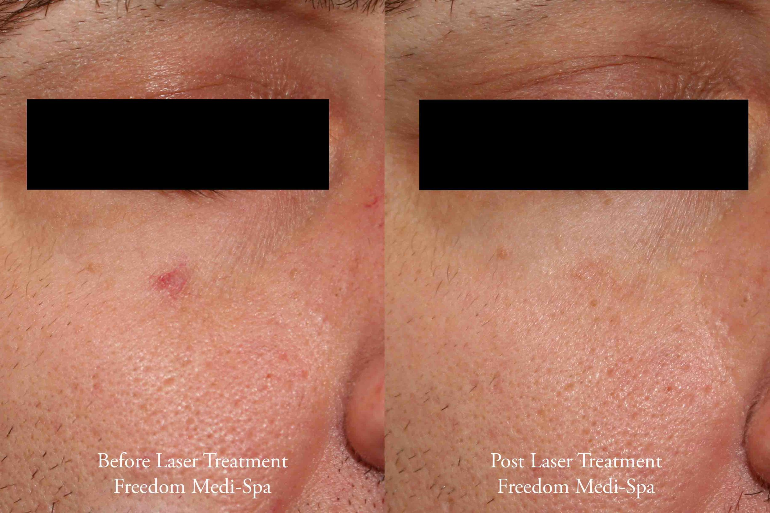 Laser Before and After Broken Capillaries.jpg