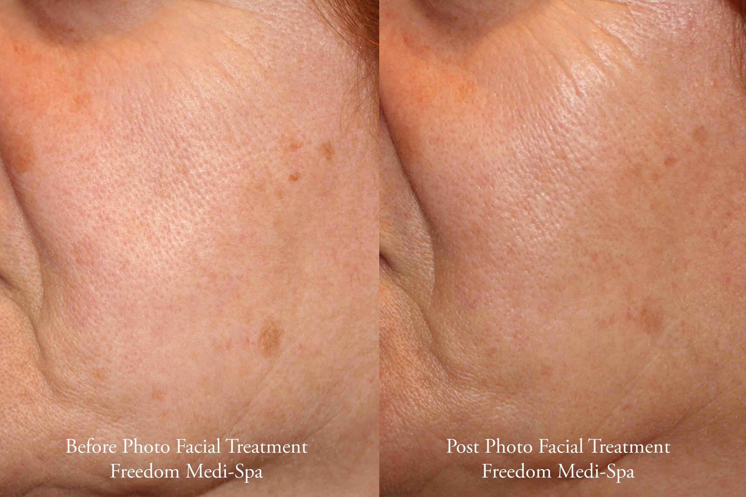 Before and After - Photo Facial for Sun Damage Pigment 2_edited-1.jpg