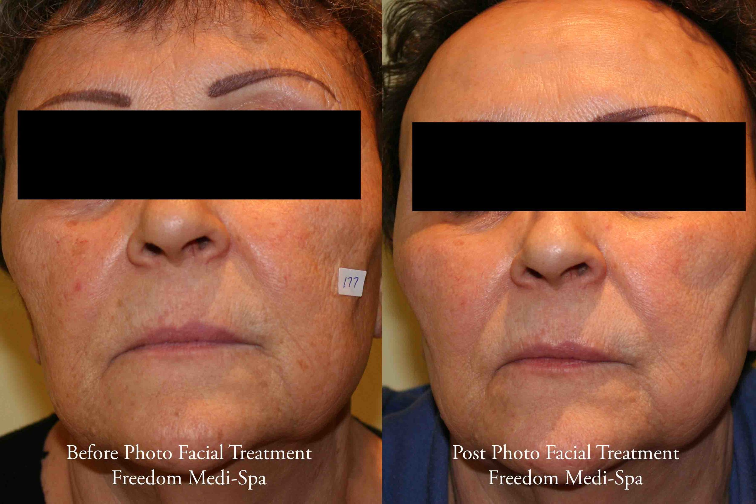 Before and After - Photo Facial for Sun Damage Pigment.jpg