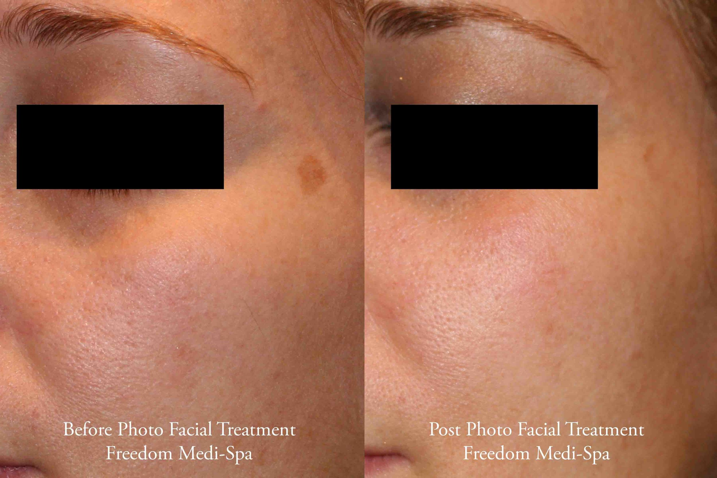Before and After - Photo Facial for Sun Damage Pigment 3.jpg