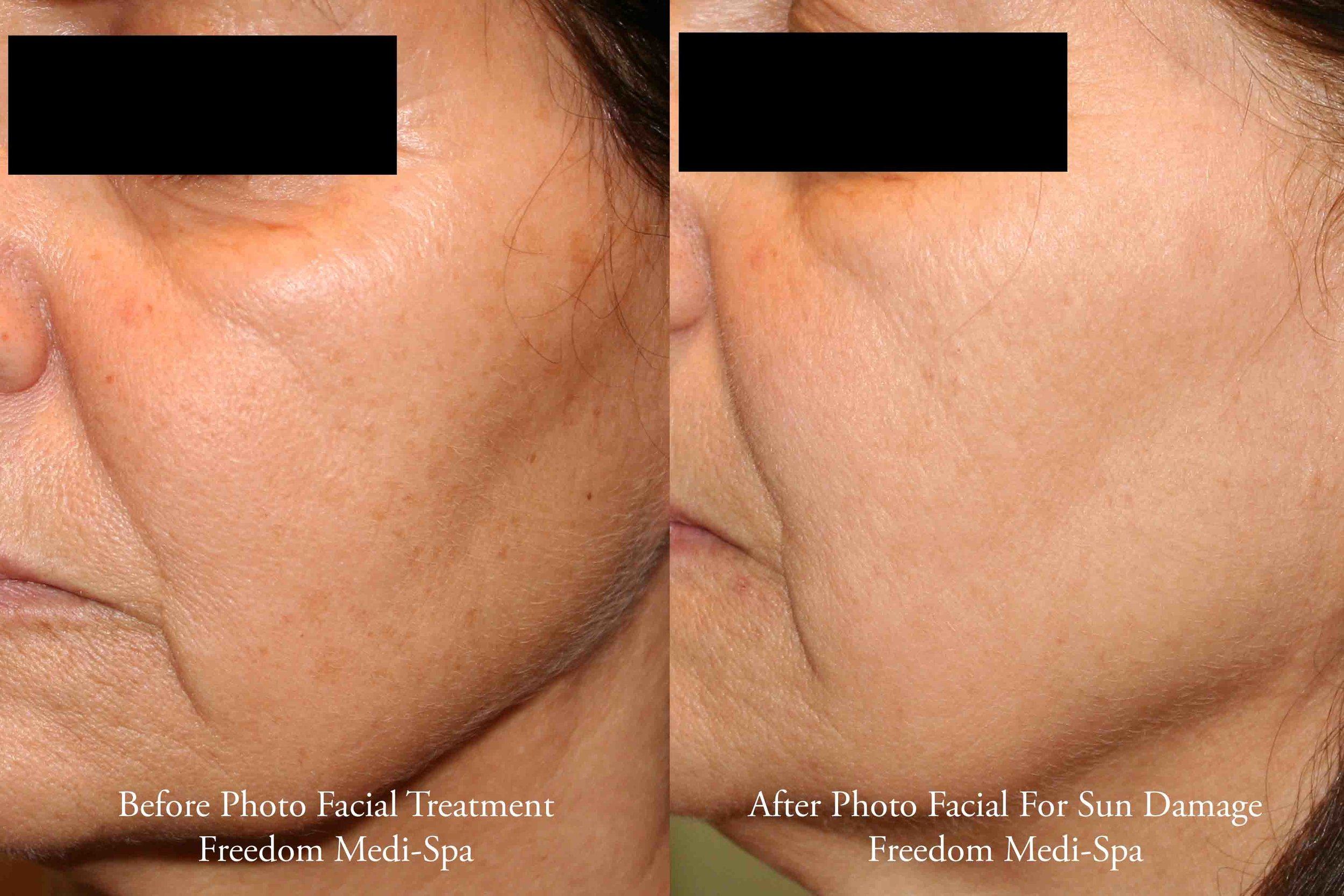 Photo Facial Before and After June 2016.jpg