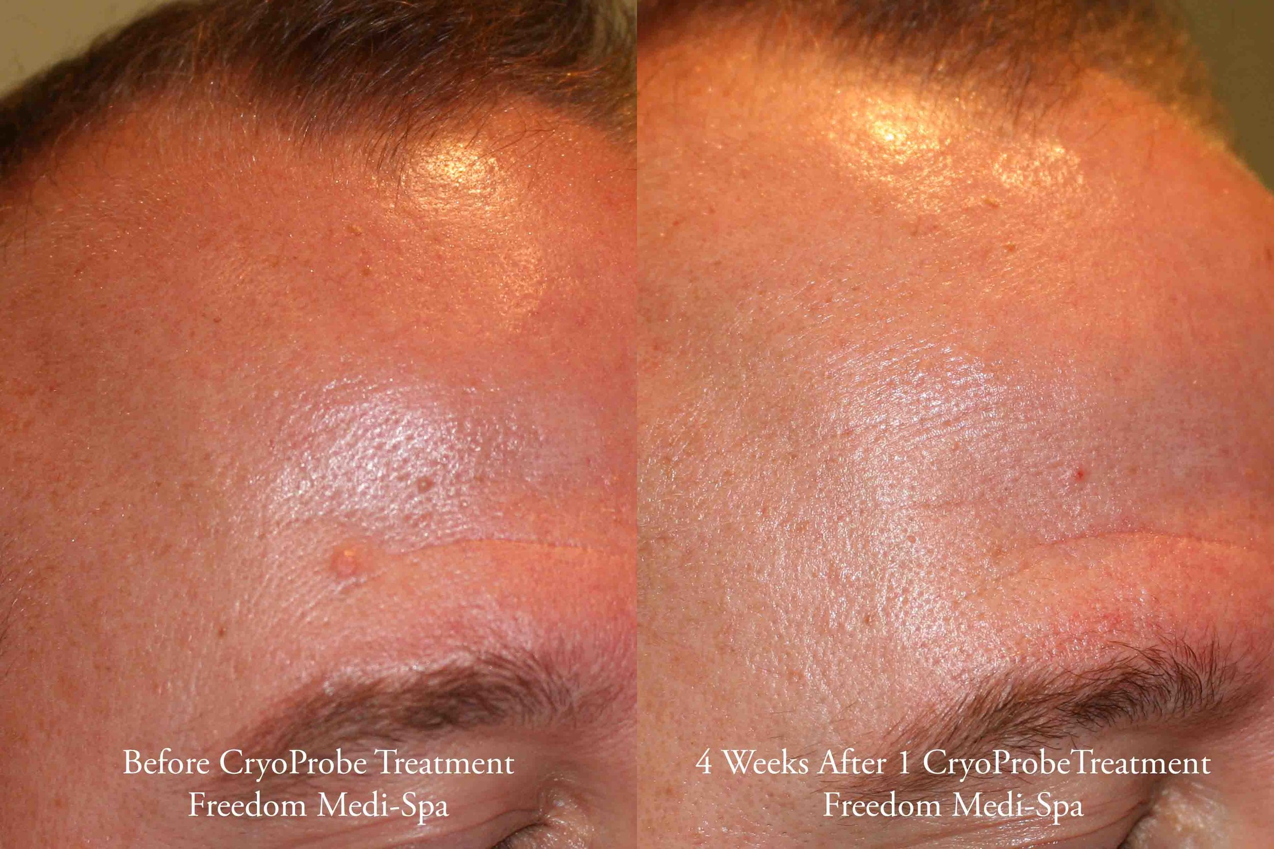CryoProbe Before and After Nov 2016.jpg