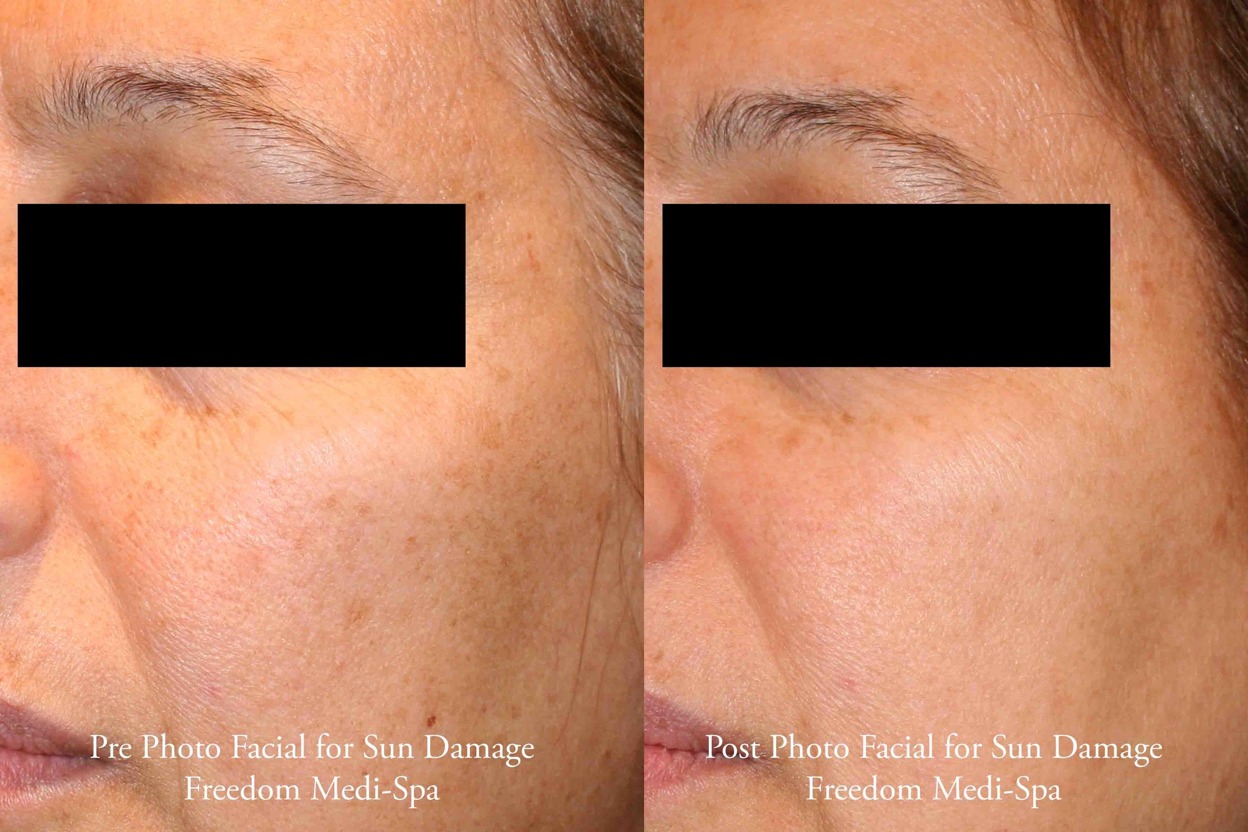 Photo Facial for Sun Damage April 2017.jpg
