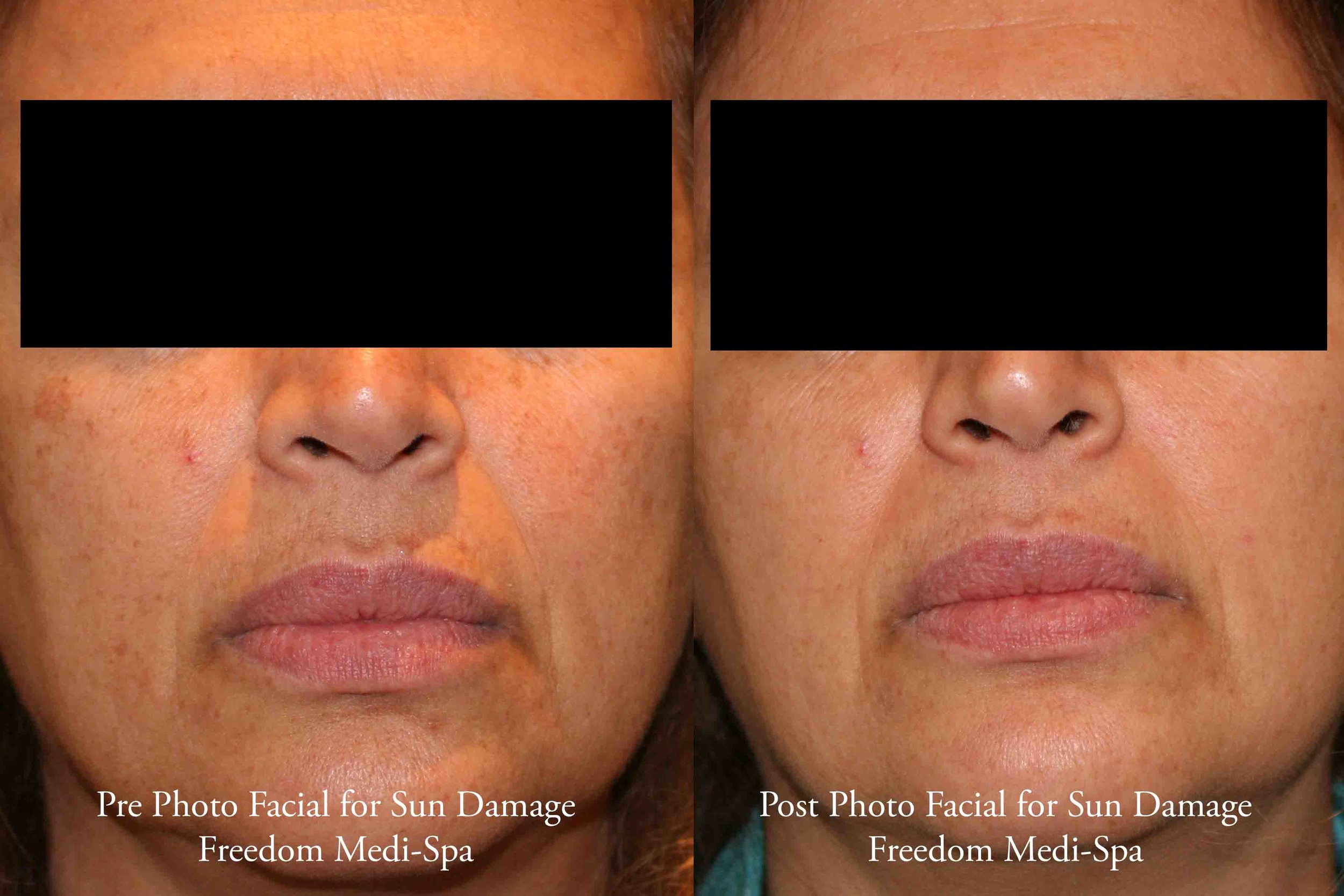 Photo Facial for Sun Damage 2 April 2017.jpg