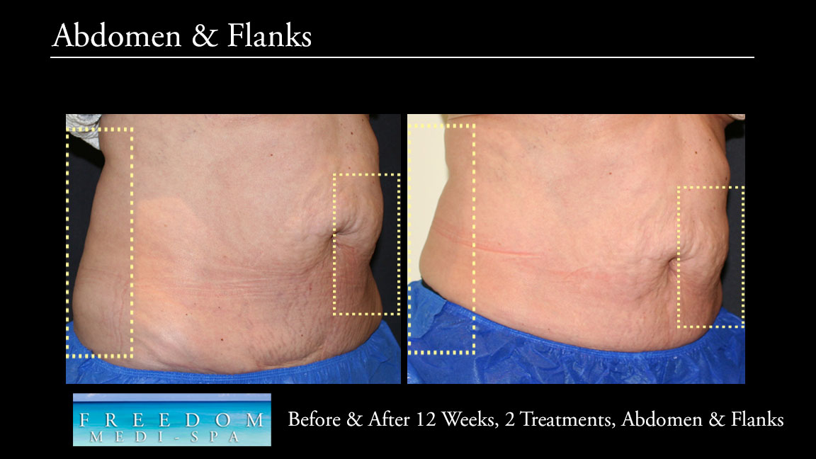 SculpSure Abs Flanks Oct 2017.jpg