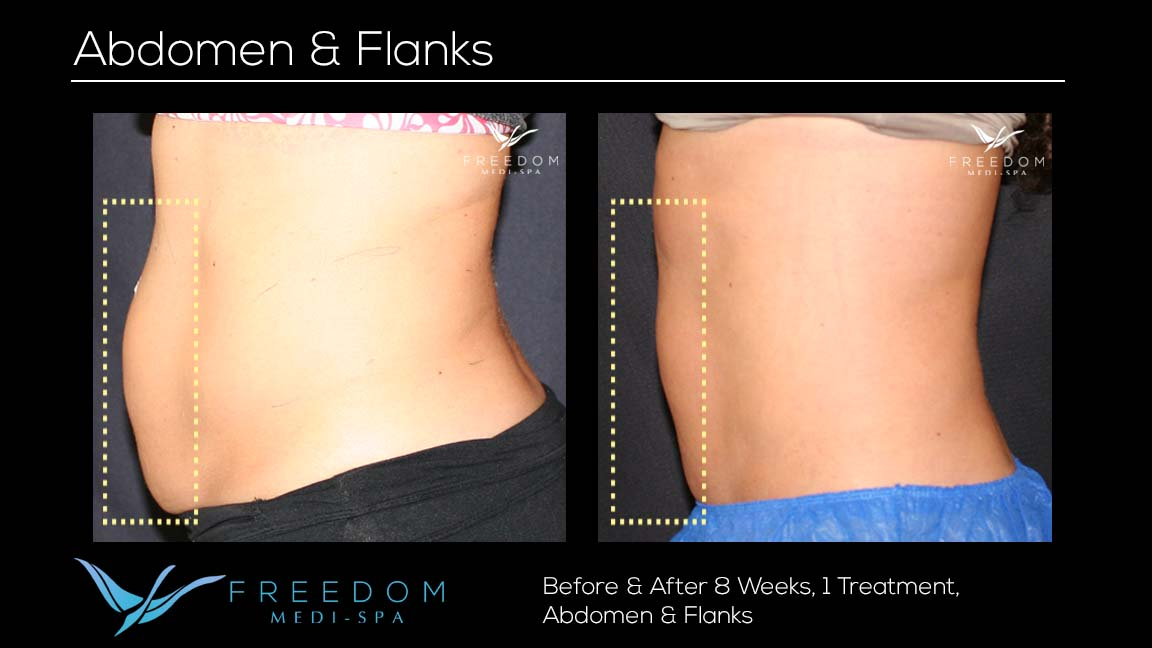 SculpSure Abs Flanks Jan 2017 v2 re-branded.jpg