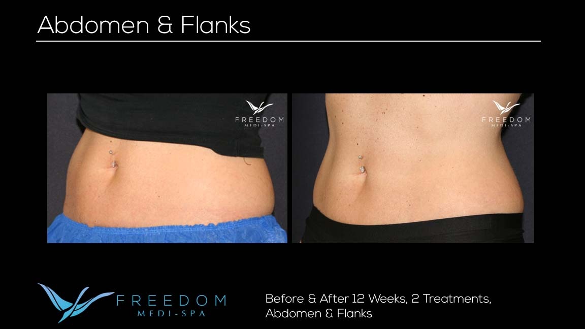 SculpSure Abs Flanks Oct 2017 4 re-branded.jpg