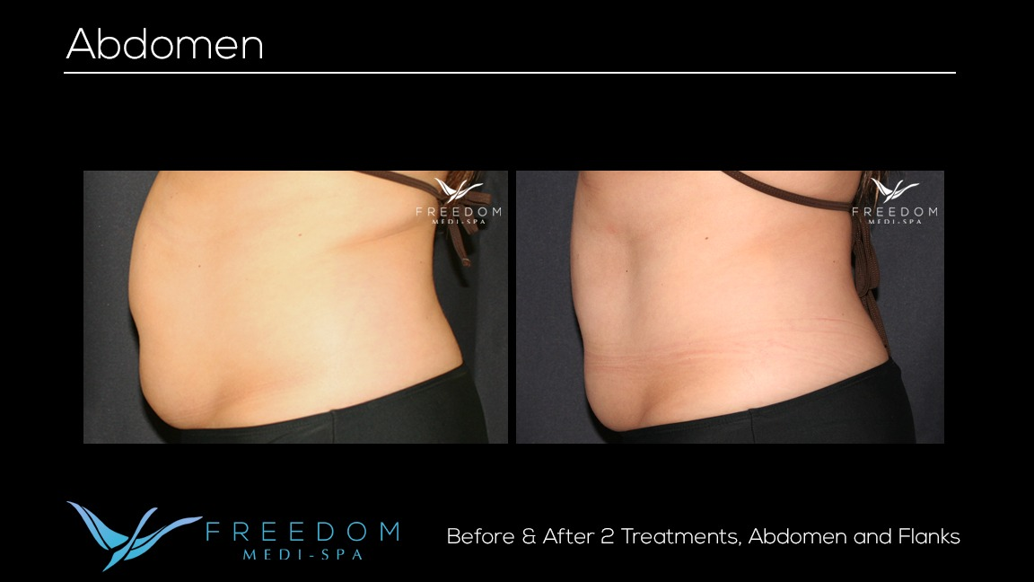 Susy's SculpSure journey before and after pics 1.jpg
