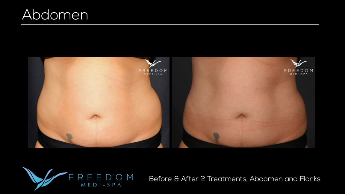 Susy's SculpSure journey before and after pics 2 .jpg