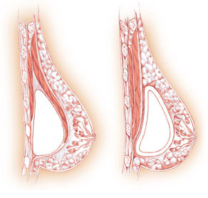 Left: submuscular. Right: subglandular.