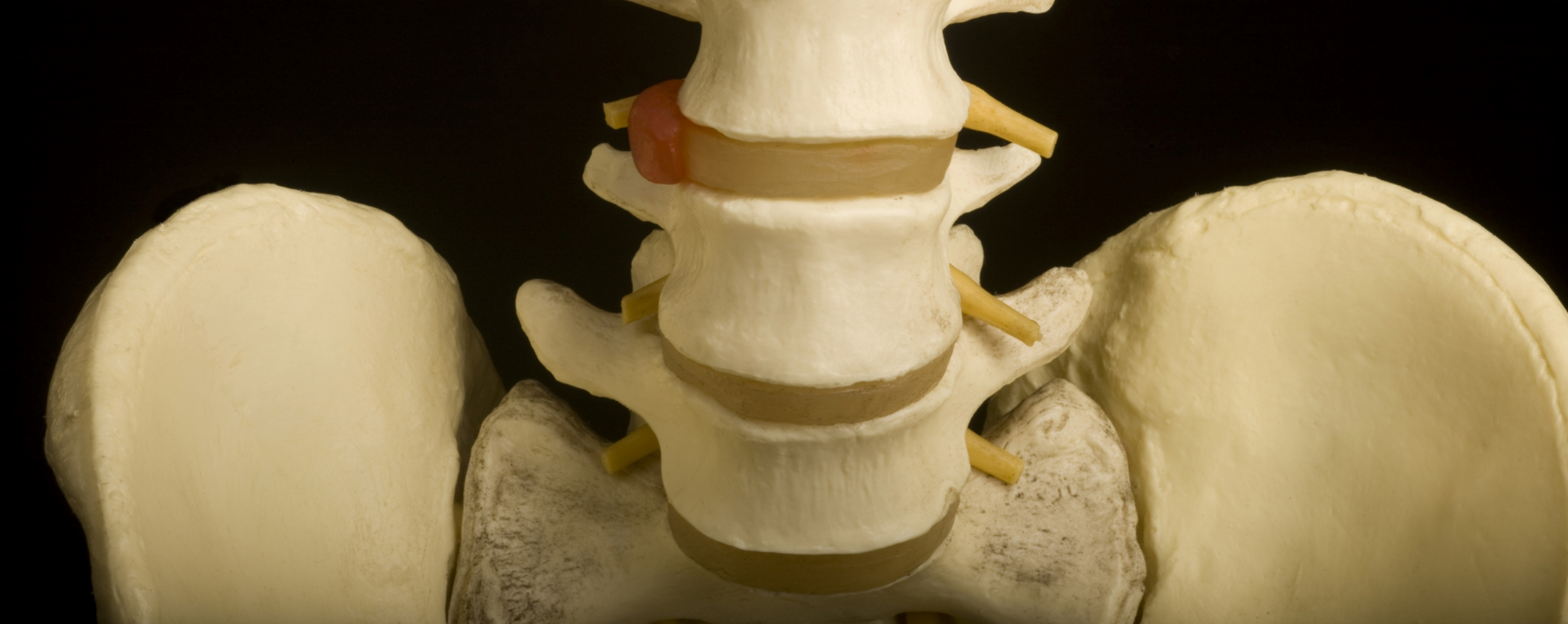 Movement of the pelvis is essential for a healthy spine