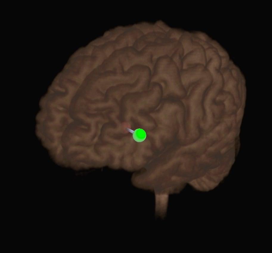 Neuronavigated TMS: Dorsolateral View of the Dorsolateral Cortex