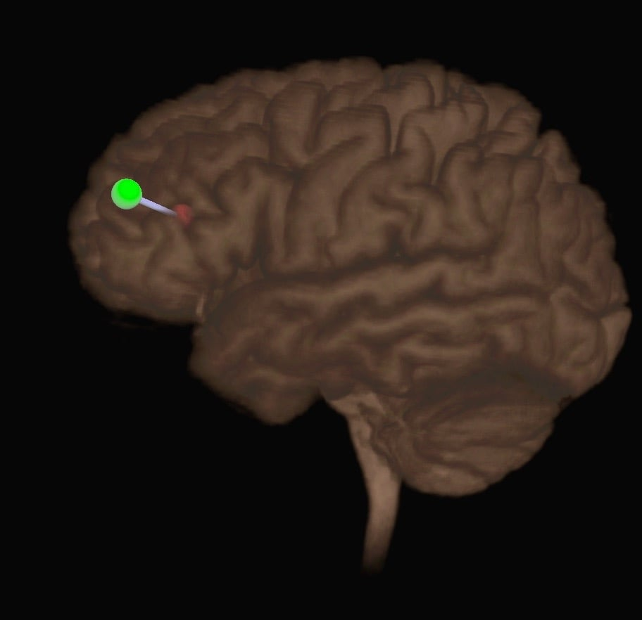 Neuronavigation allows extraordinary precision in targeting TMS.The red circle is the target in the Dorsolateral Prefrontal Cortex (DLPFC), The green is the optimal coil position for stimulation