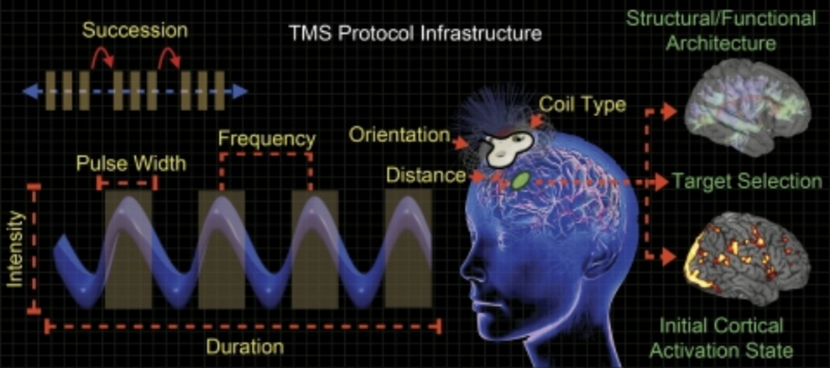 Factors that influence the effects of transcranial magnetic stimulation (TMS). Mechanical factors (yellow labels) describe TMS parameters that may be adjusted for a desired outcome. Biological factors (green labels) determine where to stimulate and may help guide the selection of specific TMS parameters. All of these factors comprise a TMS protocol, and manipulating any one of them may result in differential outcomes (for details, see text). However, mechanical factors are the most straightforward to address when planning a study, whereas biological factors require a priori knowledge of the neural system to be stimulated.