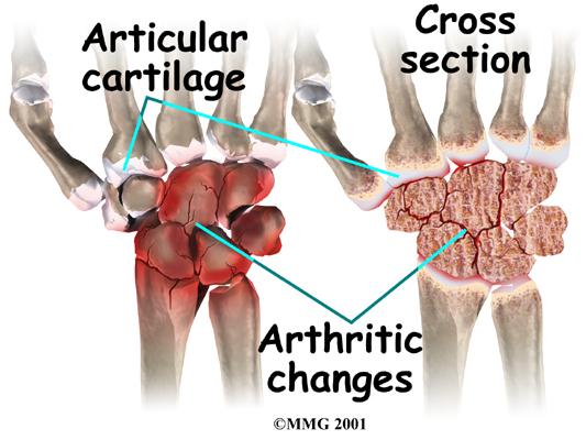 Cross section arthritis wrist.jpeg