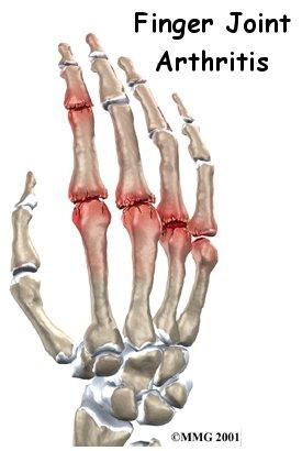 Arthritis_Treatment_Dallas.jpeg