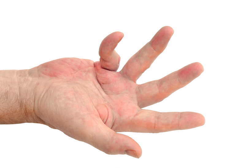 Dupuytren's Contracture Dallas