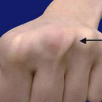 Sagittal Band Injury