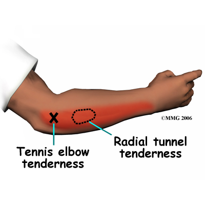 Radial Tunnel vs Tennis Elbow Treatment