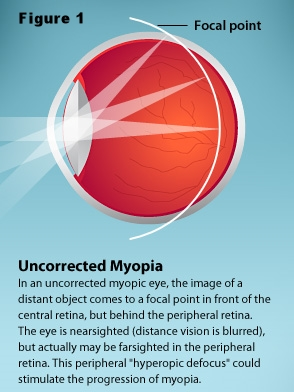 Uncorrected myopia.jpg