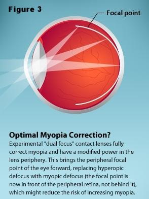 remove peripheral retinal defocus.jpg