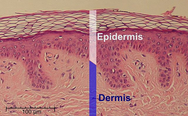 Normal Epidermis and Dermis(Public Domain) Cropped and labeled by  Fama Clamosa / Mikael Häggström