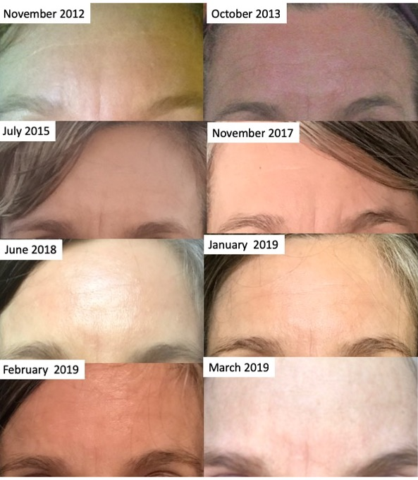 I began using forehead rejuvenation techniques in about January 2018. These photos show forehead conditions pre- and post-forehead rejuvenation practices.