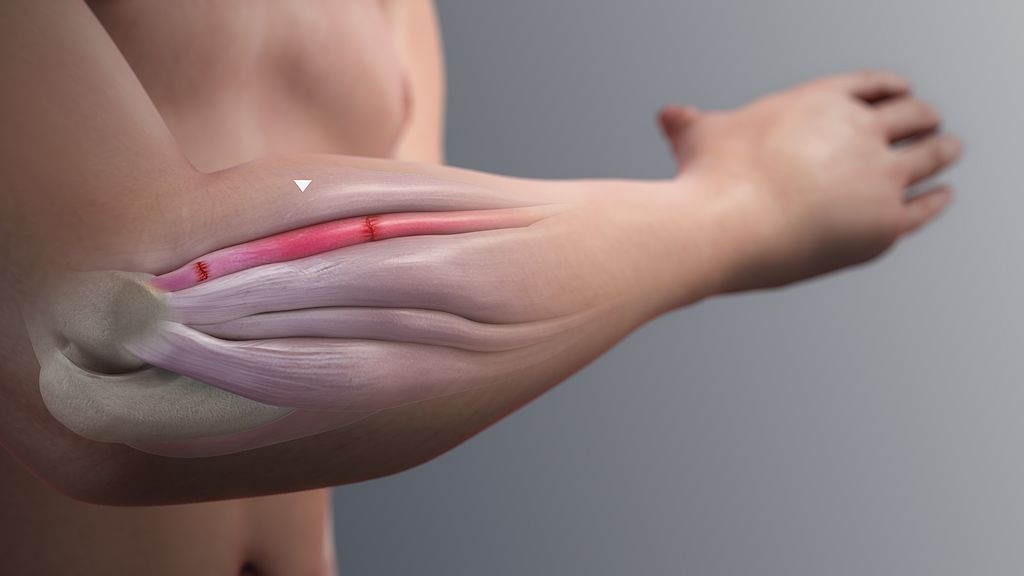 Inflammation of a Forearm Extensor Muscle by www.scientificanimations.com [CC BY-SA 4.0 (https://creativecommons.org/licenses/by-sa/4.0)]