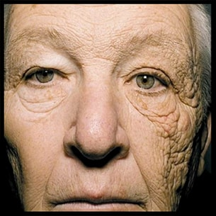 A 69-year-old man (William Edward McElligott, US citizen) presented with a 25-year history of gradual, asymptomatic thickening and wrinkling of the skin on the left side of his face… photodamaged skin, the patient had driven a delivery truck for 28 years. Ultraviolet A (UVA) rays transmit through window glass, penetrating the epidermis and upper layers of dermis. By Alex lacerda [CC BY-SA 4.0 (https://creativecommons.org/licenses/by-sa/4.0)]