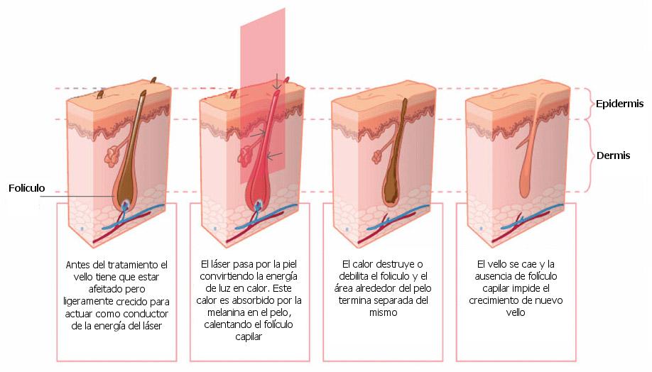 depilacion luz pulsada caracas
