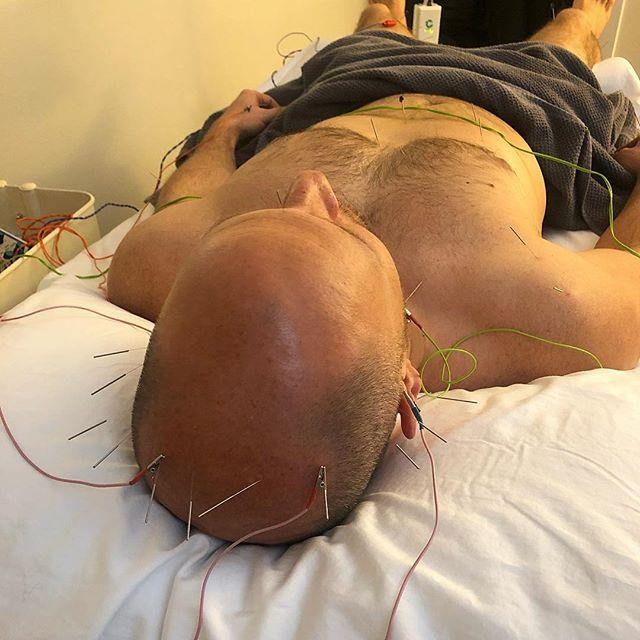 This patient was having issues with swallowing, speaking and motor movements. Similar to a Bell's Palsy treatment we did a lot of scalp acupuncture with e stim also known as Neuroacupuncture.  #acupuncture #neuroacupuncture #aphasia