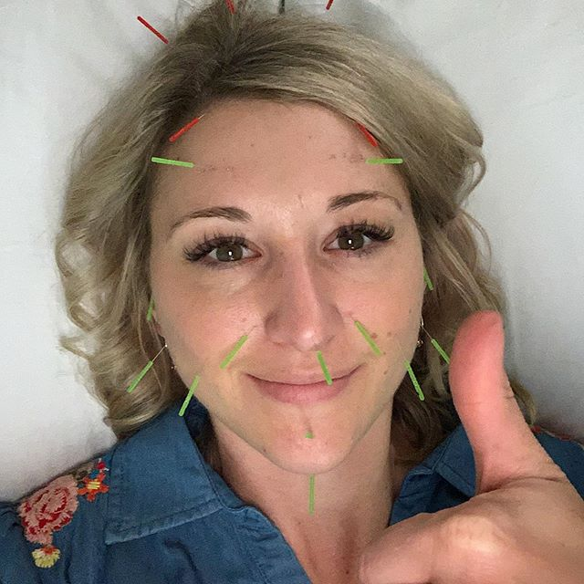 What happens when you get a late cancel on a Friday? You pop in some needles, lay down and make the most of it. 💆🏼‍♀️😴 #selfcare #makethemostofit #facialtreatment #facialrejuvenation #cosmetic #acupuncture #antiaging #agegracefully #weekend #denver