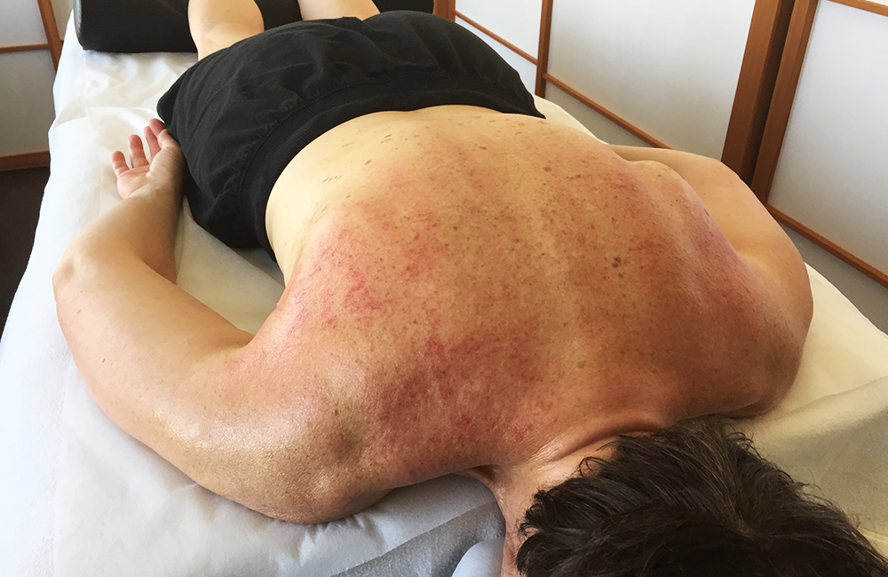 """Guasha - Also known as """"scraping"""", and """"coining"""", is a therapeutic technique that uses a smooth-edged instrument on lubricated skin that serves to release toxins and promote healing of injured tissue. """"Modern research shows Gua sha produces an anti-inflammatory and immune protective effect that persists for days following a single Gua sha treatment. This accounts for its effect on pain, stiffness, fever, chill, cough, wheeze, nausea and vomiting etc., and why Gua sha is effective in acute and chronic internal organ disorders including liver inflammation in hepatitis."""" -Arya Nielsen"""